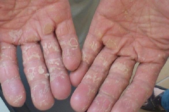 Cách chăm sóc da tay bị bong tróc