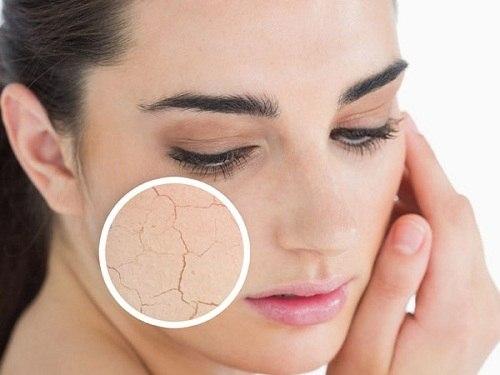 Da khô là biểu hiện của lão hóa da
