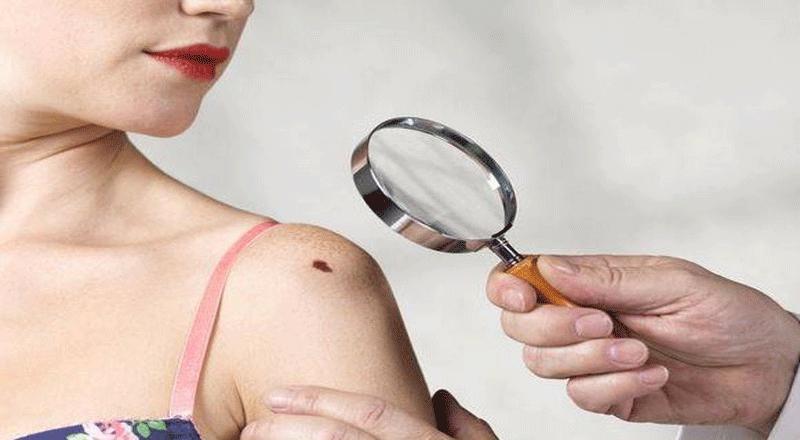 Điểm danh những nốt ruồi may mắn trên cơ thể phụ nữ