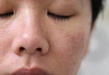 Viêm lỗ chân lông đang là vấn đề mà nhiều người gặp phải