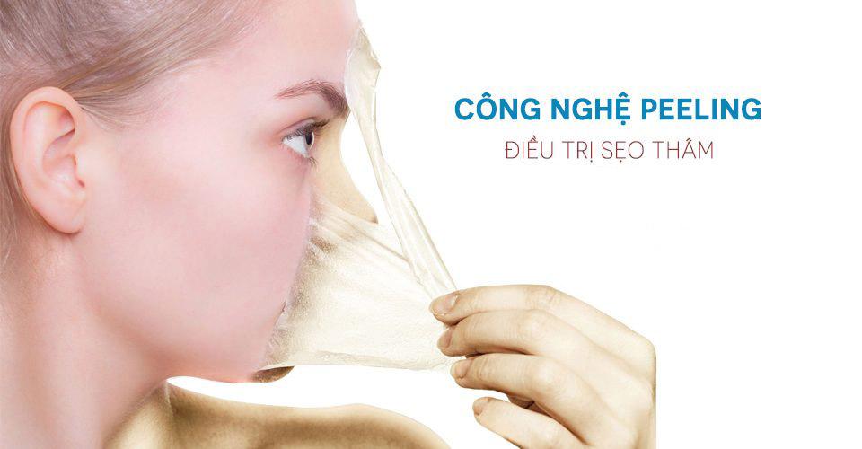 Công nghệ Peeling an toàn với da