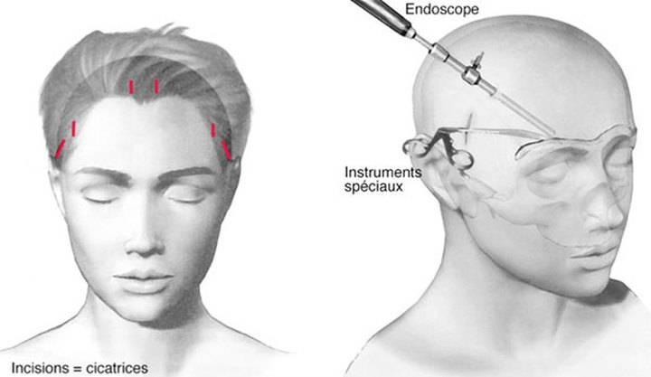 Hình ảnh nâng cơ mặt bằng nội soi.