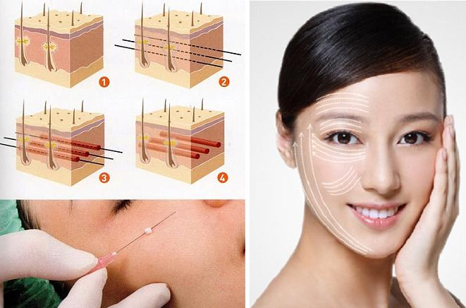 Phương pháp nâng cơ mặt nội soi là gì? Có an toàn hay không?