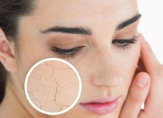 Tiết lộ cách chăm sóc da vào mùa hanh khô hiệu quả nhất